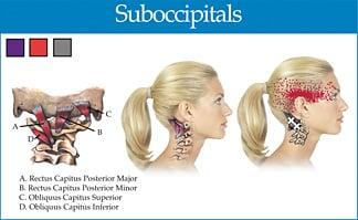 Suboccipitalis triggerpunkt smertemønster - Foto MT