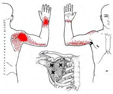 Subscapularis myalgi smertemønster - Foto Wiki