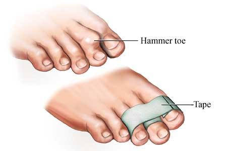 Teiping av hammertå