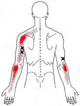 Triceps myalgi triggerpunkt smertemønster - Foto Wikimedia