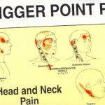 Fullstendig oversikt over muskulære triggerpunkter.
