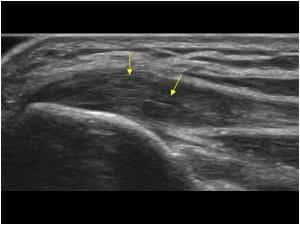 Ultralyd av medial epikondylit - Foto Wiki