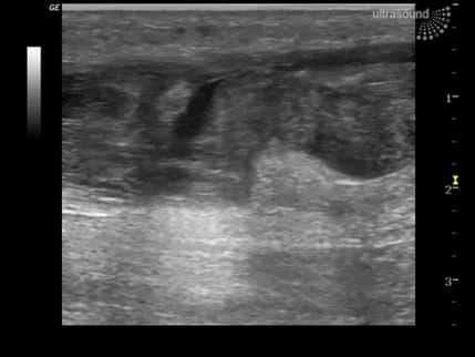 Ultralyd undersøkelse av akillessenen - Foto Wiki