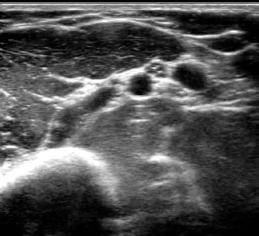 Ultralyd undersøkelse av overarm - Foto Wiki