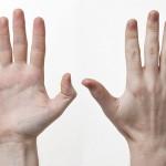 Betennelse i Fingerleddene