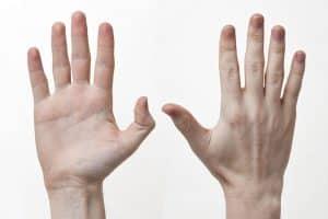 Vondt i hånden - Foto Wikimedia