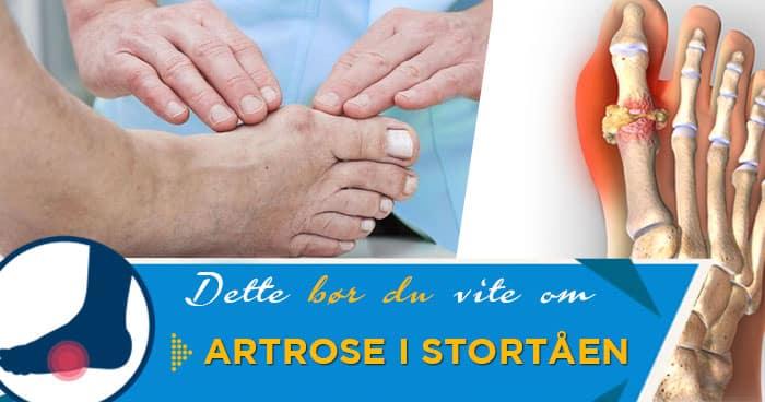 artrose i storetåen