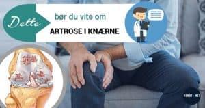 artrose i KNÆRNE