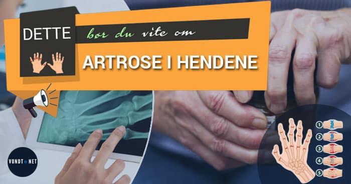 artrose i hendene