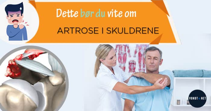 artrose i skuldrene