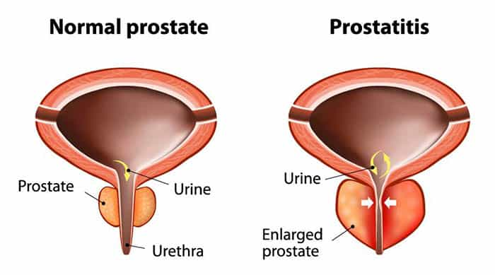 betennelse i prostata