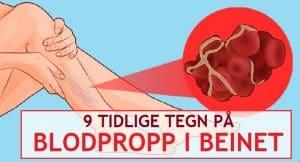 blodpropp i beinet 5