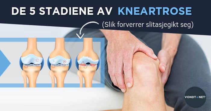 5-те етапа на артроза на коляното [Как да развием..
