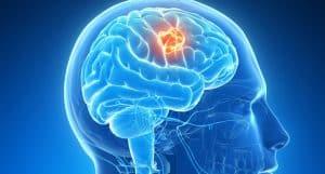 hjernesvulst