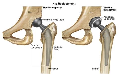 Ny Behandling Kan Forhindre Hofteprotese Studie