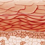 Autoimmun angioødem (akutt opphovning av hud)