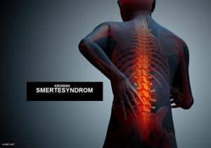 kronisk smertesyndrom - vondt net