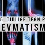 15 Tidlige Tegn på Revmatisk Artritt