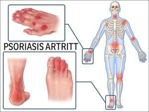 psoriasis artritt 700