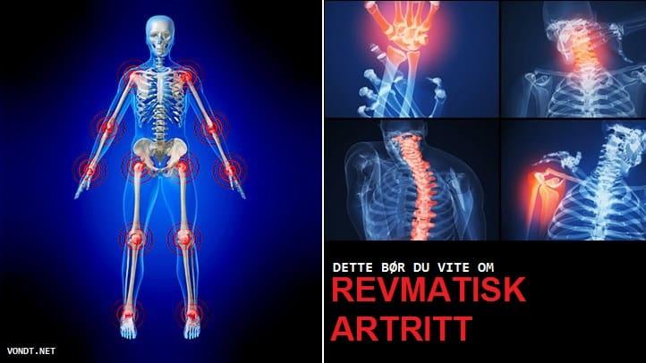 revmatisk artritt edited 2