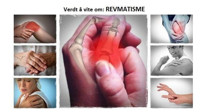 revmatisme-design-1