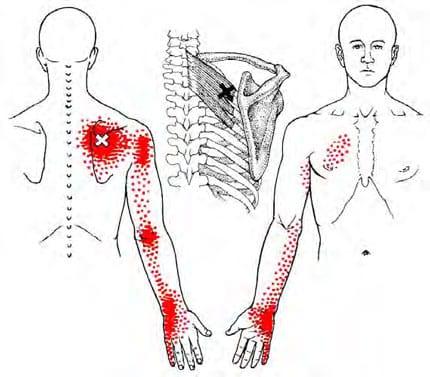 rhomboideus triggerpunkt