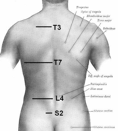 Smerter i ryggen venstre side