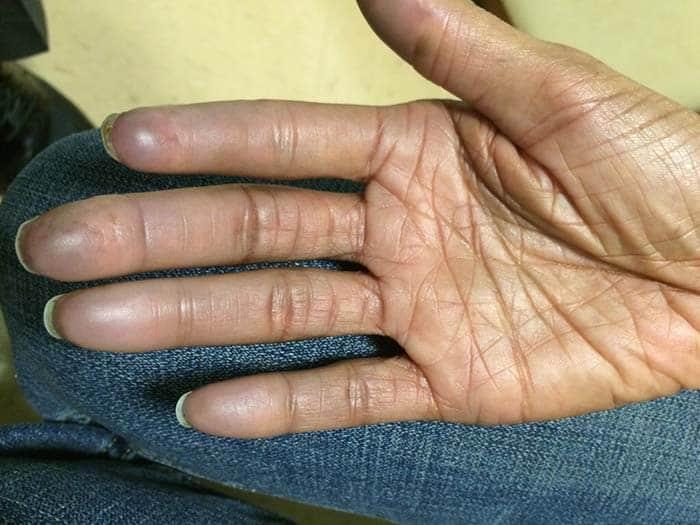 systemisk sklerodermi