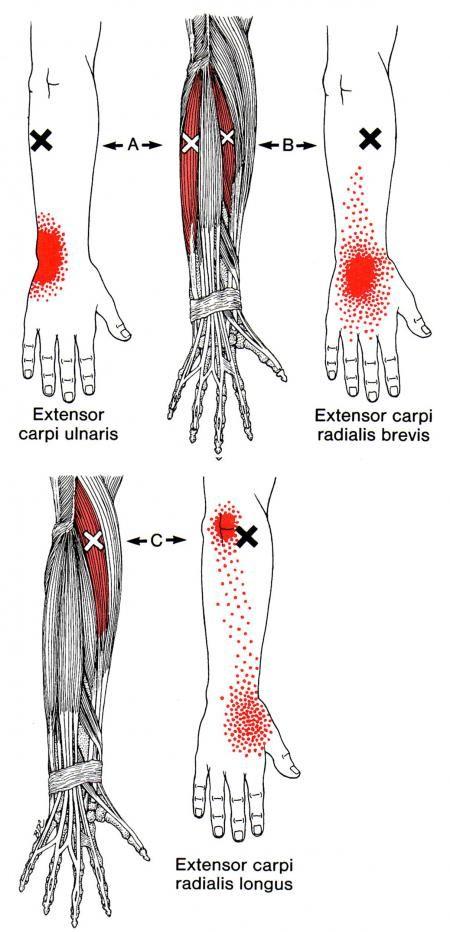 underarmsmuskler triggerpunkt